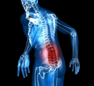 POSTURAL SYNDROME OF THE LOWER BACK