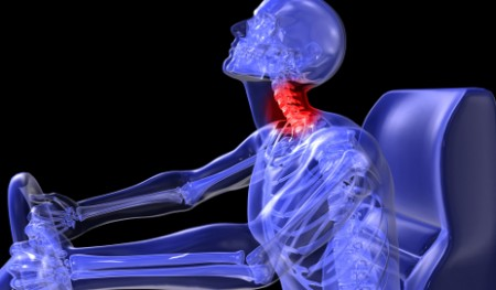 Physiotherapy for Whiplash